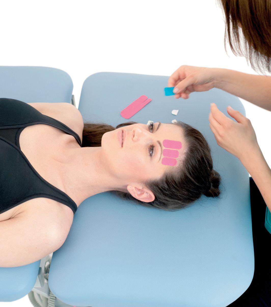 tejpování obličeje - tejpování lícního nervu