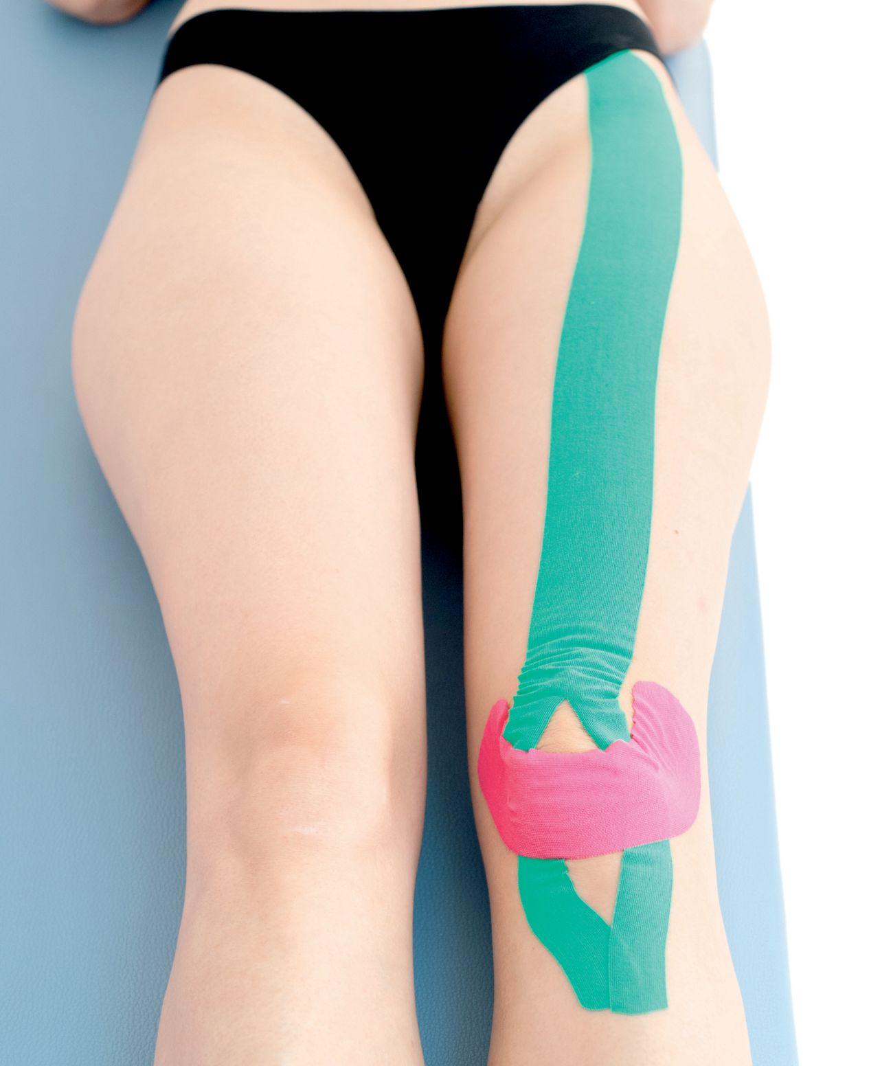 Tejpování úponů stehenního svalu 1