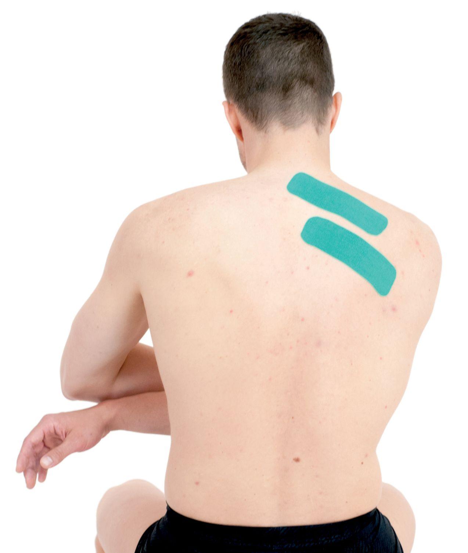 Tejpování rombických svalů