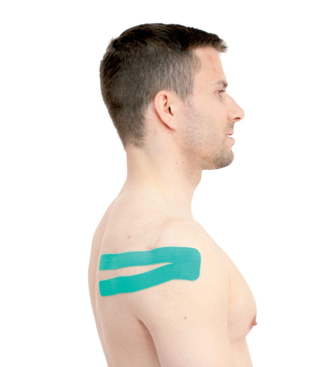 Tejpování ramene – podhřebenového svalu 1