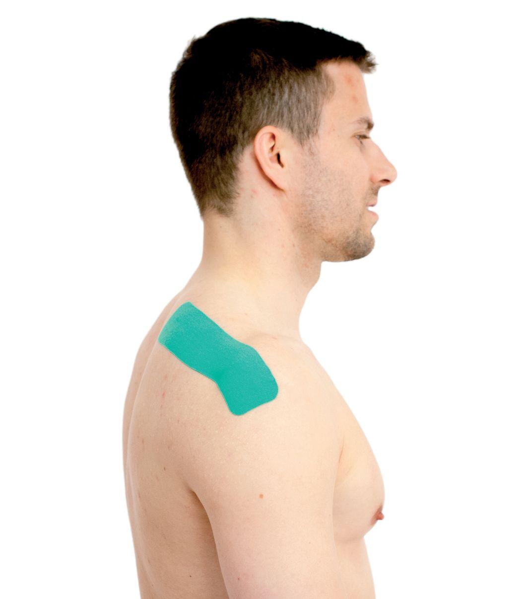 Tejpování ramene – nadhřebenového svalu 2
