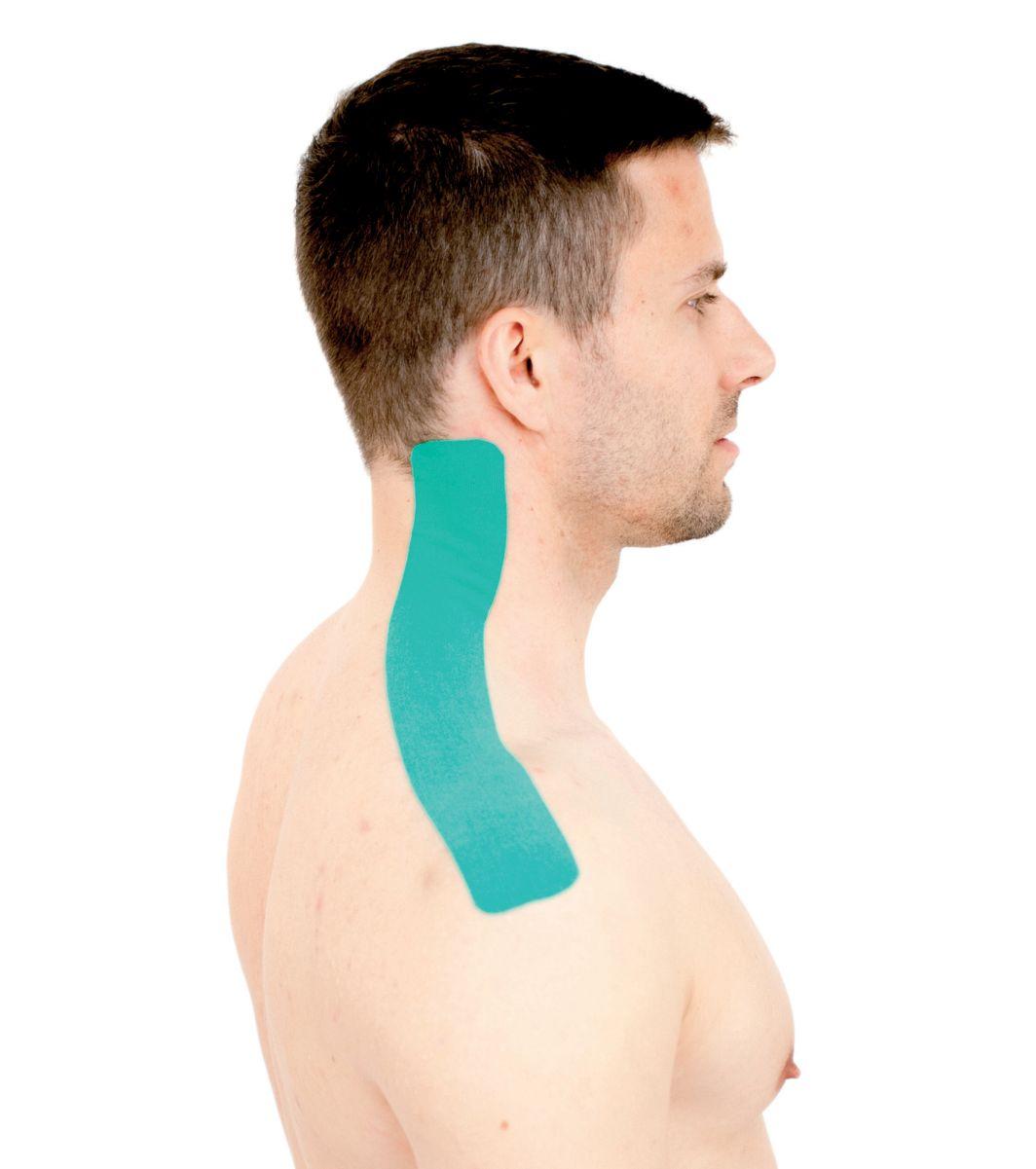 Tejpování krku – krčních svalů 1